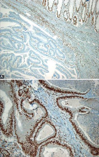 Microsatellite instability and B-type Raf proto-oncogene mutation in colorectal cancer: Clinicopathological characteristics and effects on survival