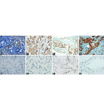Human epidermal growth factor receptor 2 (HER-2) status evaluation in advanced gastric cancer using immunohistochemistry versus silver in situ hybridization