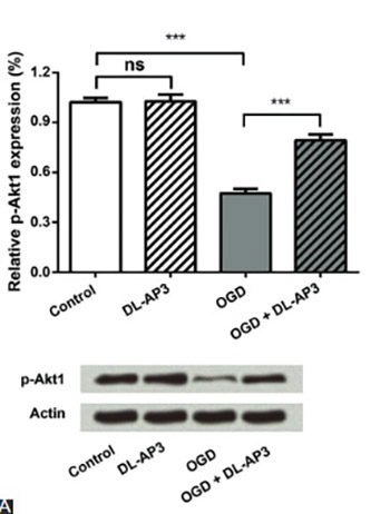 DL-2-amino-3-phosphonopropionic acid protects primary neurons from oxygen-glucose deprivation induced injury