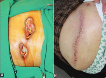 Nicolau Syndrome after Intramuscular Injection of Non-Steroidal Anti-Inflammatory Drugs (NSAID)