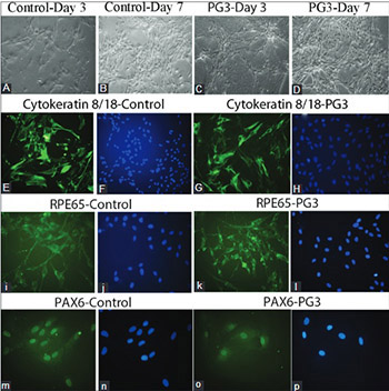 The effects of platelet gel on cultured human retinal pigment epithelial (hRPE) cells