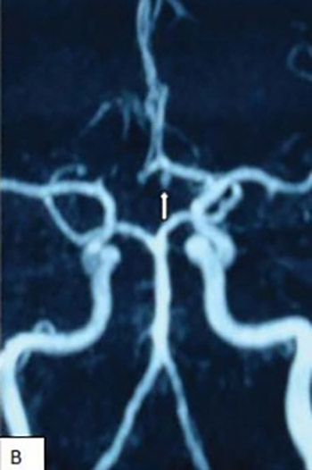 Treatment of aneurysms arising from the proximal (A1) segment of the anterior cerebral artery