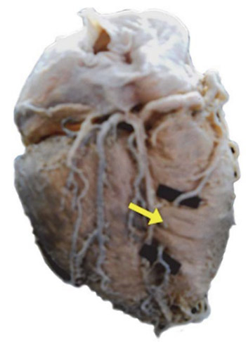 Morphological aspects of myocardial bridges