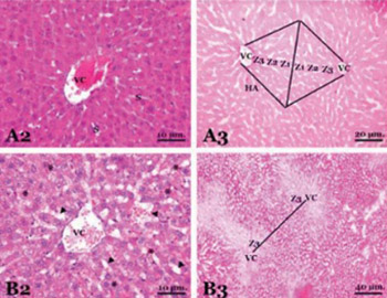 The protective effect of diosmin on hepatic ischemia reperfusion injury: an experimental study