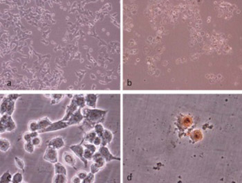 Induction of apoptosis by grape seed extract (Vitis vinifera) in oral squamous cell carcinoma