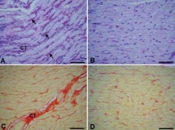 Glycogen accumulation in cardiomyocytes and cardiotoxic effects after 3NPA treatment