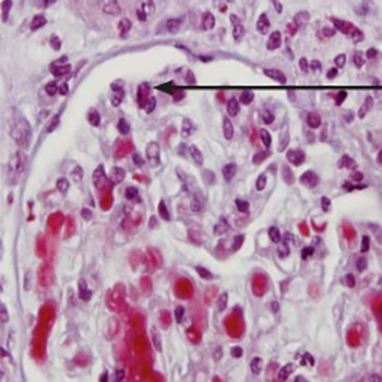 Microscopic polyangiitis presented with polyneuropathy of lower extremities and ANCA-associated glomerulonephritis: Case Report