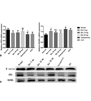 Berberine alleviates oxidative stress in rats with osteoporosis through receptor activator of NF-kB/receptor  activator of NF-kB ligand/osteoprotegerin (RANK/RANKL/OPG) pathway