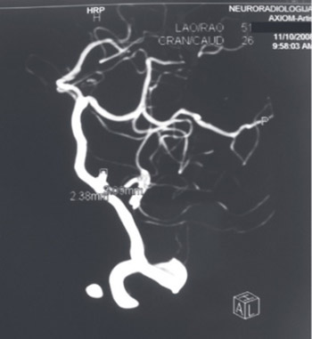 Cerebral aneurysm associated with cardiac myxoma: Case Report