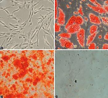 Upregulation of miR-210 promotes differentiation of mesenchymal stem cells (MSCs) into osteoblasts