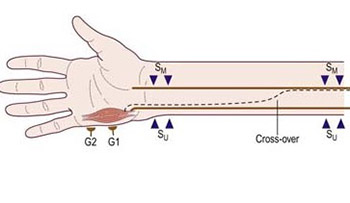 Martin-gruber Anastomosis and Transposition in Cubital Tunnel
