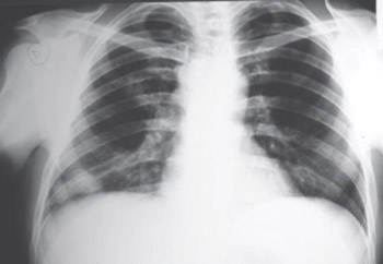 A Case of T/null Anaplastic Large Cell Lymphoma Arising in Lung