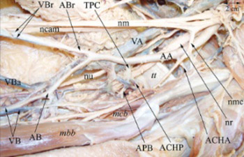 A coincidental variation of the axillary artery: the brachioradial artery and the aberrant posterior humeral circumflex artery passing under the tendon of the latissimus dorsi muscle