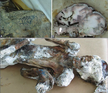Histological observations on adipocere in human remains buried for 21 years at the Tomašica grave-site in Bosnia and Herzegovina