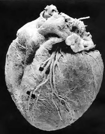 Anatomical-clinical investigations of variations of the human coronary arteries