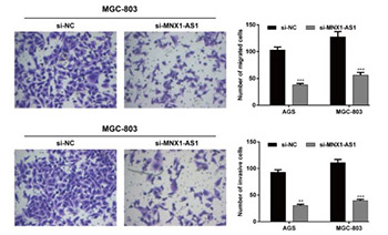 Upregulated expression of MNX1-AS1 long noncoding RNA predicts poor prognosis in gastric cancer