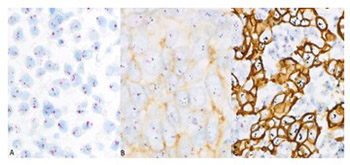 Internodal HER2 heterogeneity of axillary lymph node metastases in breast cancer patients