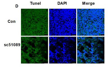 EP1 receptor is involved in prostaglandin E2-induced osteosarcoma growth