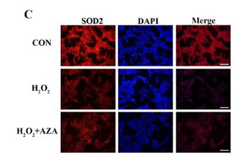 Effect of SOD2 methylation on mitochondrial DNA4834-bp deletion mutation in marginal cells under oxidative stress