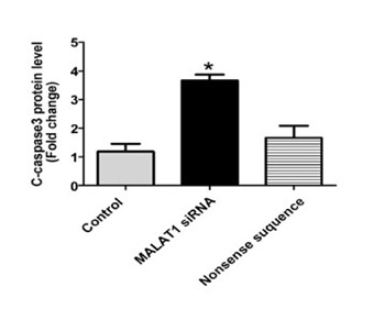MALAT1 inhibits the Wnt/β-catenin signaling pathway in colon cancer cells and affects cell proliferation and apoptosis