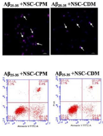 Neural stem cell-conditioned medium ameliorates Aβ25–35-induced damage in SH-SY5Y cells by protecting mitochondrial function