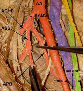 Upper limb principal arteries variations: A cadaveric study with terminological implication
