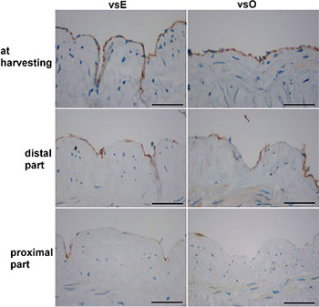 Endothelial loss during the surgical procedure in saphenous veins harvested by open and endoscopic techniques in coronary artery bypass surgery