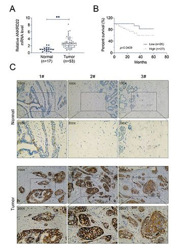 ANKRD22 enhances breast cancer cell malignancy by activating the Wnt/β-catenin pathway via modulating NuSAP1 expression