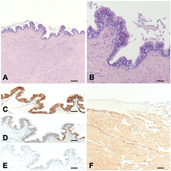 Lingual cyst with respiratory epithelium: The importance of differential diagnosis