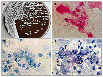 Clinical Nocardia species: Identification, clinical characteristics, and antimicrobial susceptibility in Shandong, China