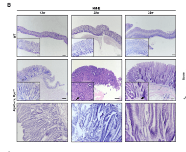 Stomach-specific c-Myc overexpression drives gastric adenoma in mice via AKT/mTOR signaling