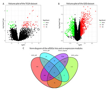 Bioinformatics analysis reveals TSPAN1 as a candidate biomarker of progression and prognosis in pancreatic cancer
