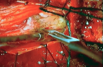 Microsurgical resection of giant T11/T12 conus cauda equine schwannoma