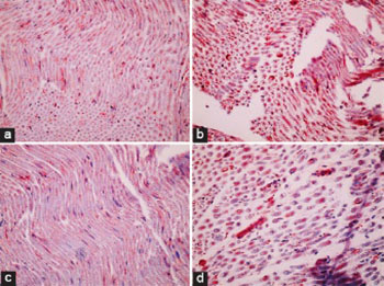 Different dose-dependent effects of ebselen in sciatic nerve ischemia-reperfusion injury in rats