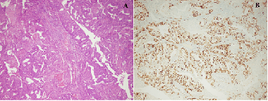 The impact of Ki-67 index, squamous differentiation and several clinicopathologic parameters on the recurrence of low and intermediate-risk endometrial cancer