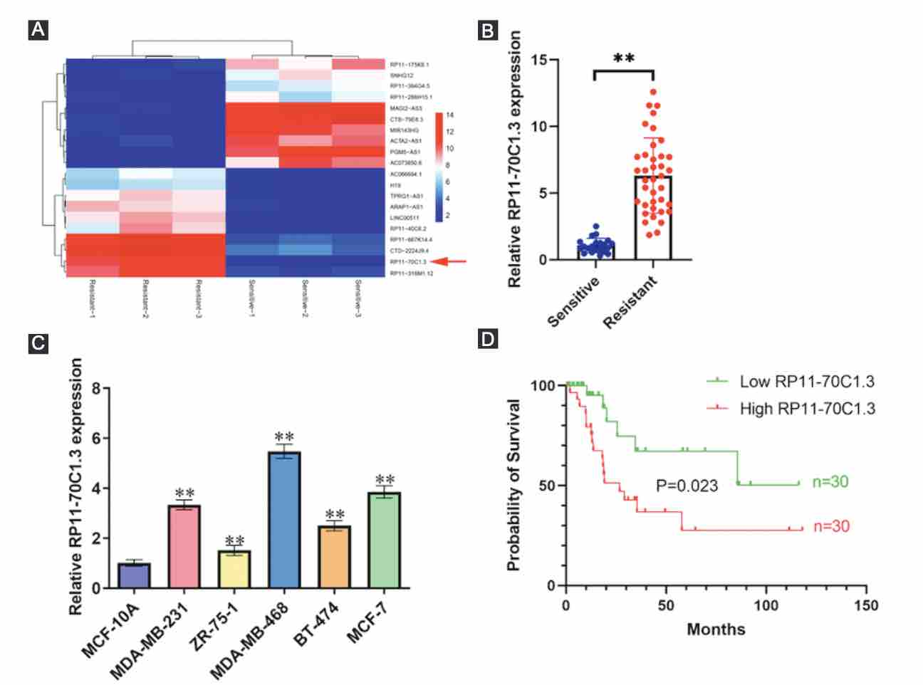 Long noncoding RNA RP11-70C1.3 confers chemoresistance of breast cancer cells through miR-6736-3p/NRP-1 axis