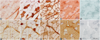 Skeletal muscle and fiber type-specific intramyocellular lipid accumulation in obese mice