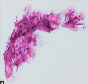 Diagnostic dilemma of parotid lipomas: imaging versus fine needle aspiration cytology
