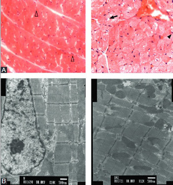 Effect and mechanisms of zinc supplementation in protecting against diabetic cardiomyopathy in a rat model of type 2 diabetes